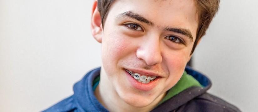 orthodontics-s