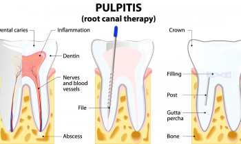 root-canal-therapy-s