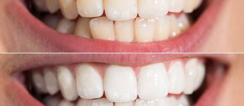 teeth-whitening-s